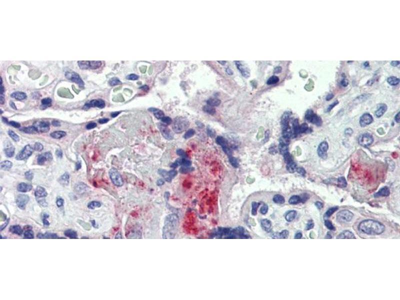 Immunohistochemistry (IHC) image for anti-Coagulation Factor II (thrombin) (F2) (Middle Region) antibody (ABIN2776976)