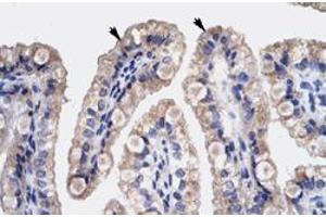 Image no. 1 for anti-High Mobility Group Box 3 (HMGB3) antibody (ABIN5580030)