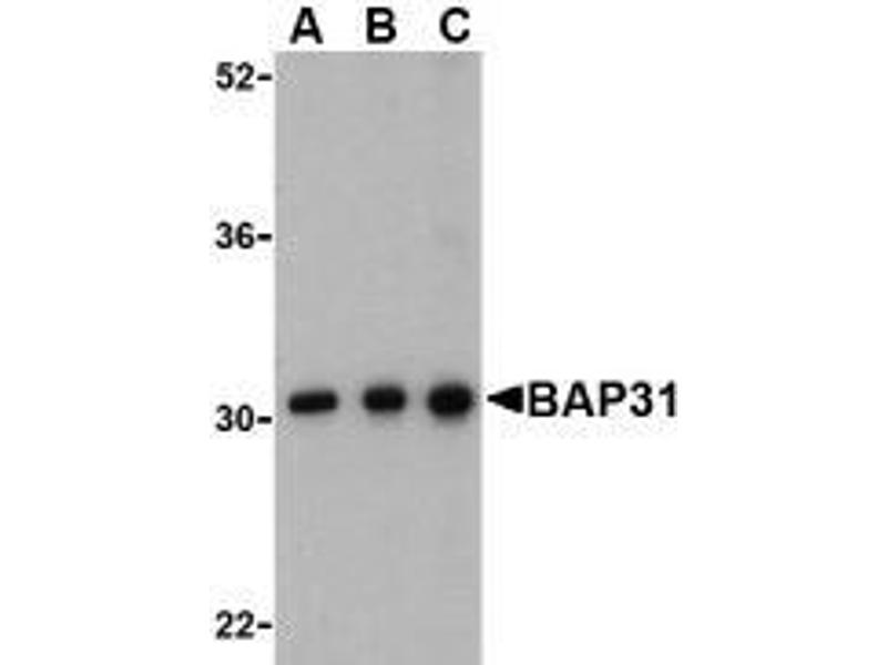 Western Blotting (WB) image for anti-B-Cell Receptor-Associated Protein 31 (BCAP31) (C-Term) antibody (ABIN499417)