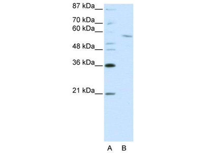 Western Blotting (WB) image for anti-REST Corepressor 1 (RCOR1) (C-Term) antibody (ABIN2780966)