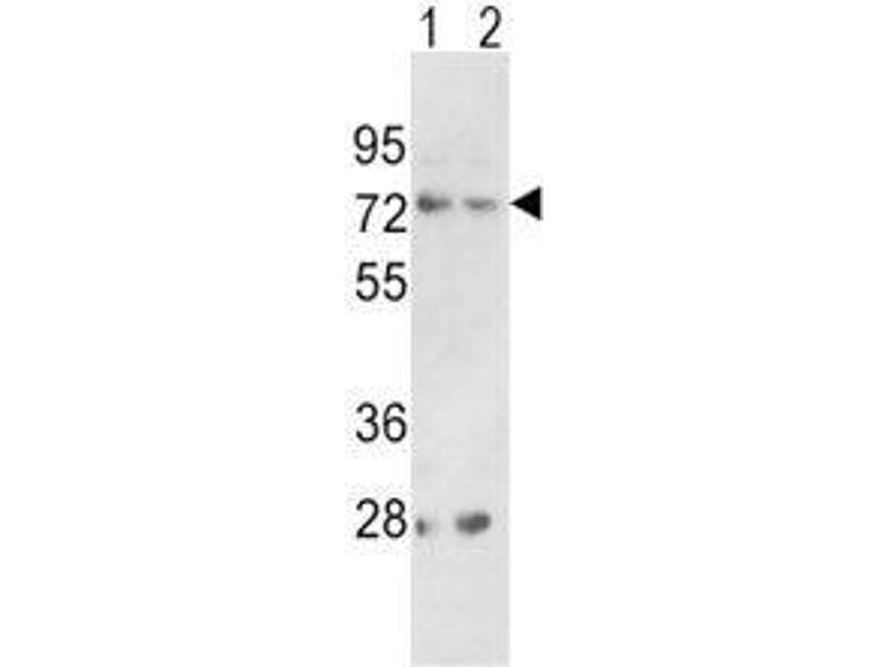 Western Blotting (WB) image for anti-Proprotein Convertase Subtilisin/kexin Type 2 (PCSK2) (AA 318-346) antibody (ABIN3032333)