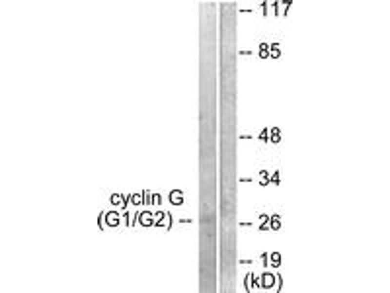 Western Blotting (WB) image for anti-Cyclin G1 antibody (CCNG1) (ABIN1533251)