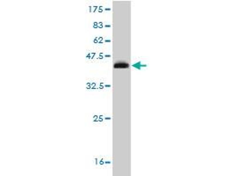 Western Blotting (WB) image for anti-RAR-Related Orphan Receptor B (RORB) (AA 136-225) antibody (ABIN393394)