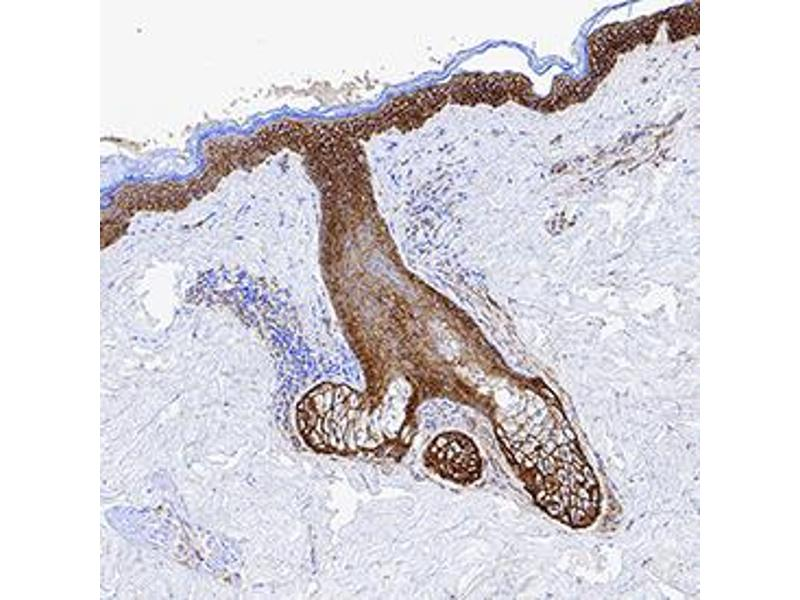 Immunohistochemistry (IHC) image for anti-Epidermal Growth Factor Receptor (EGFR) (AA 25-645) antibody (ABIN4899925)