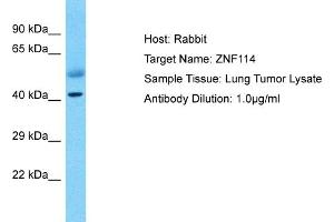 Image no. 1 for anti-Zinc Finger Protein 114 (ZNF114) (C-Term) antibody (ABIN2775123)