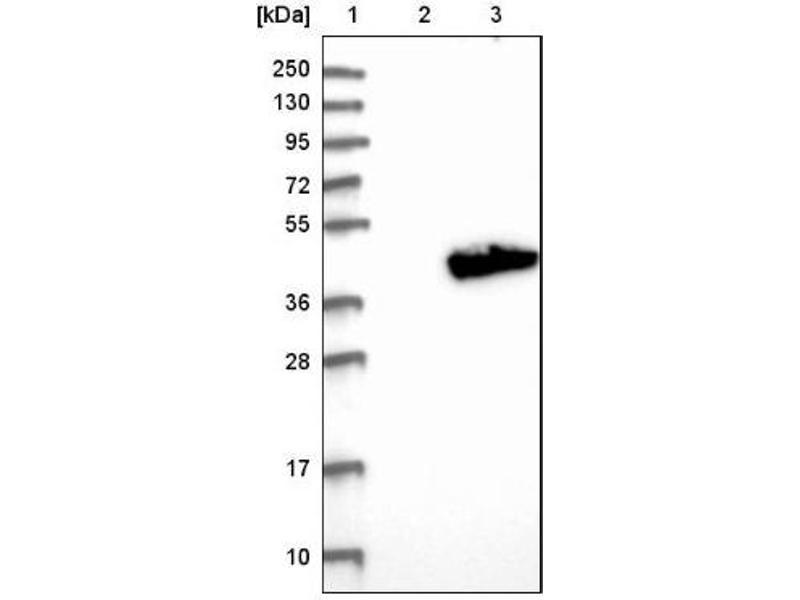 Western Blotting (WB) image for anti-ADP-Ribosylhydrolase Like 2 (ADPRHL2) antibody (ABIN4278516)