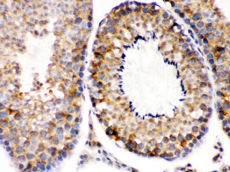 Immunohistochemistry (Paraffin-embedded Sections) (IHC (p)) image for anti-DIABLO antibody (Second Mitochondria-Derived Activator of Caspase) (AA 56-239) (ABIN3044515)