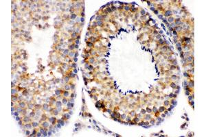 Immunohistochemistry (Paraffin-embedded Sections) (IHC (p)) image for anti-Second Mitochondria-Derived Activator of Caspase (DIABLO) (AA 56-239) antibody (ABIN3044515)