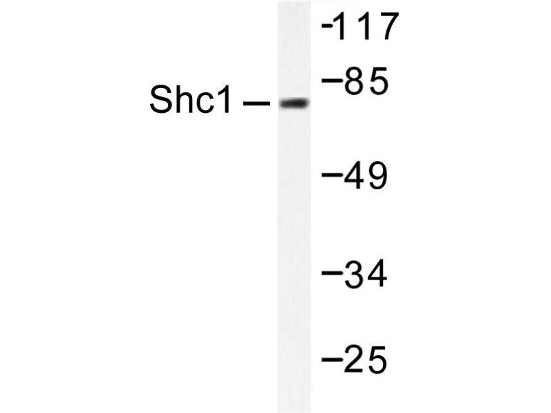 image for anti-SHC1 antibody (SHC (Src Homology 2 Domain Containing) Transforming Protein 1) (ABIN271910)