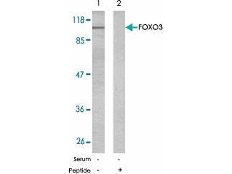 Western Blotting (WB) image for anti-Forkhead Box O3 (FOXO3) antibody (ABIN546257)