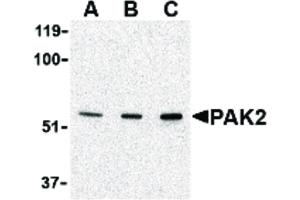 Image no. 1 for anti-P21-Activated Kinase 2 (PAK2) (N-Term) antibody (ABIN6656730)