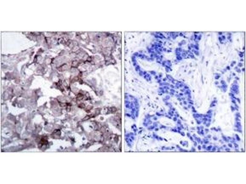 Immunohistochemistry (IHC) image for anti-Epidermal Growth Factor Receptor (EGFR) (AA 1139-1188) antibody (ABIN1532852)