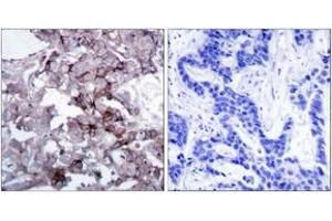 Immunohistochemistry (IHC) image for anti-EGFR antibody (Epidermal Growth Factor Receptor) (ABIN1532852)