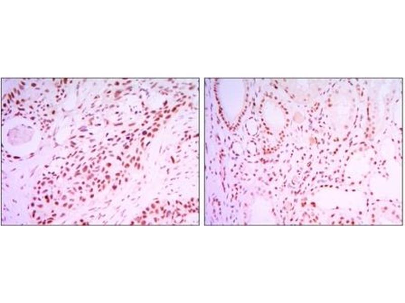 Immunohistochemistry (IHC) image for anti-Sirtuin 1 (SIRT1) antibody (ABIN1109014)