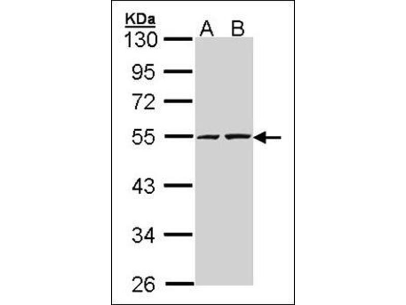 Western Blotting (WB) image for anti-RuvB-Like 2 (E. Coli) (RUVBL2) (Ser129) antibody (ABIN615542)