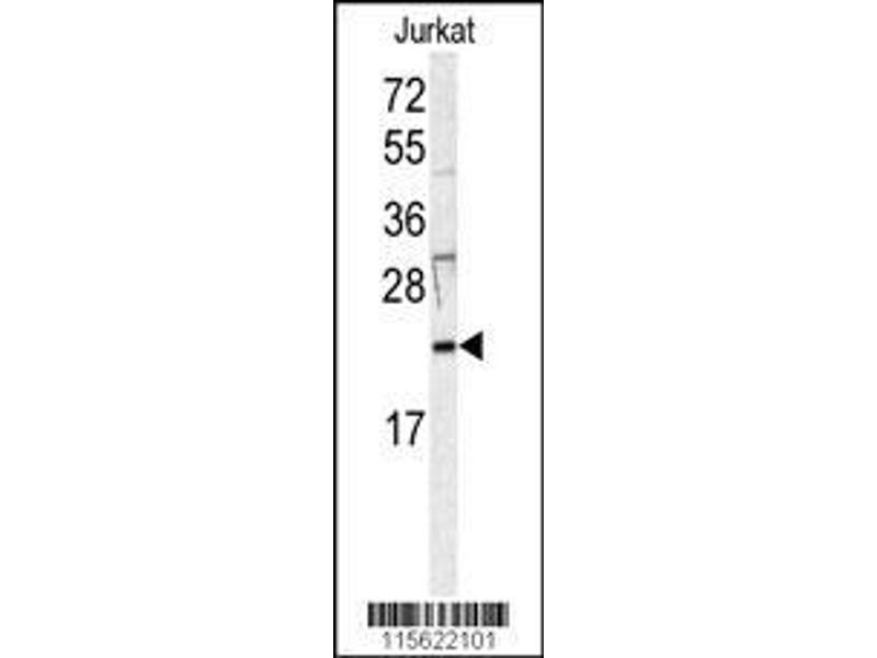 Western Blotting (WB) image for anti-HRAS antibody (V-Ha-Ras Harvey Rat Sarcoma Viral Oncogene Homolog) (AA 104-128) (ABIN392183)