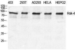 Western Blotting (WB) image for anti-Ribosomal Protein S6 Kinase, 90kDa, Polypeptide 6 (RPS6KA6) (C-Term) antibody (ABIN3186848)