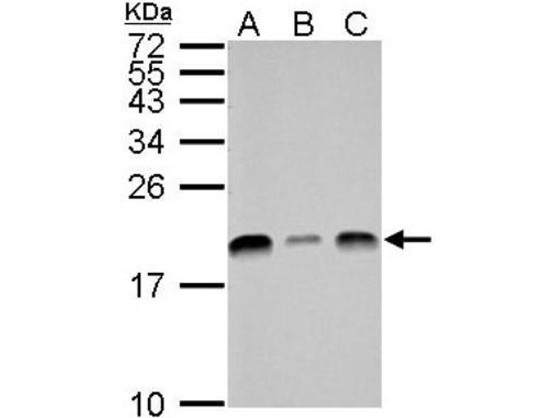 Western Blotting (WB) image for anti-Ubiquitin-Conjugating Enzyme E2L 3 (UBE2L3) (C-Term) antibody (ABIN441038)