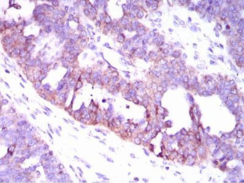 Immunohistochemistry (IHC) image for anti-Calcium/calmodulin-Dependent Protein Kinase IV (CAMK4) (AA 35-292) antibody (ABIN1098144)