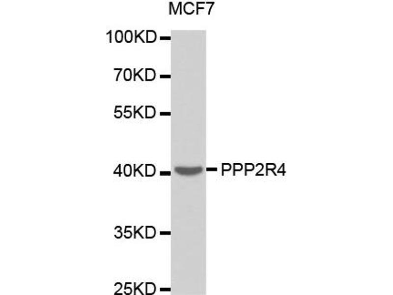 Western Blotting (WB) image for anti-PPP2R4 antibody (Protein Phosphatase 2A Activator, Regulatory Subunit 4) (ABIN1874229)
