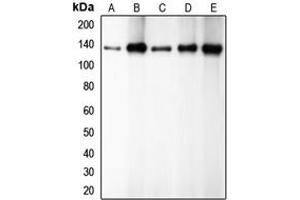 Western Blotting (WB) image for anti-Cadherin 1, Type 1, E-Cadherin (Epithelial) (CDH1) (C-Term) antibody (ABIN2704739)