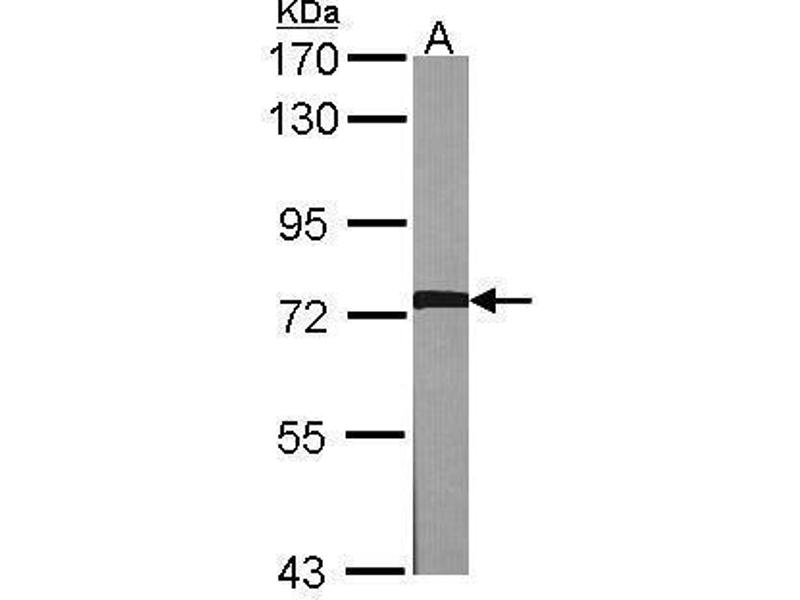 Western Blotting (WB) image for anti-Adrenergic, Beta, Receptor Kinase 1 (ADRBK1) (C-Term) antibody (ABIN2855125)