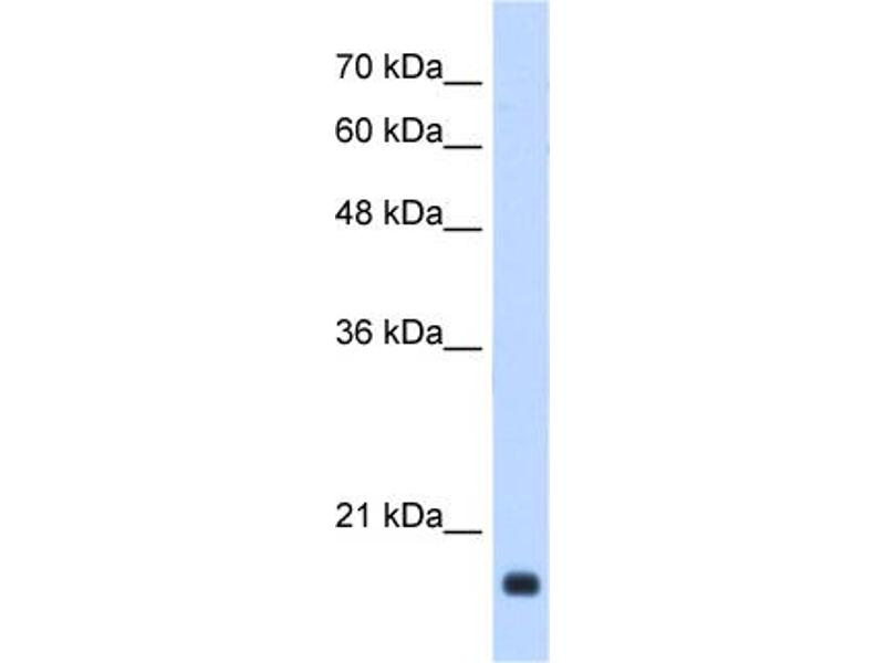 Western Blotting (WB) image for anti-Growth Arrest and DNA-Damage-Inducible, beta (GADD45B) (Middle Region) antibody (ABIN2783334)