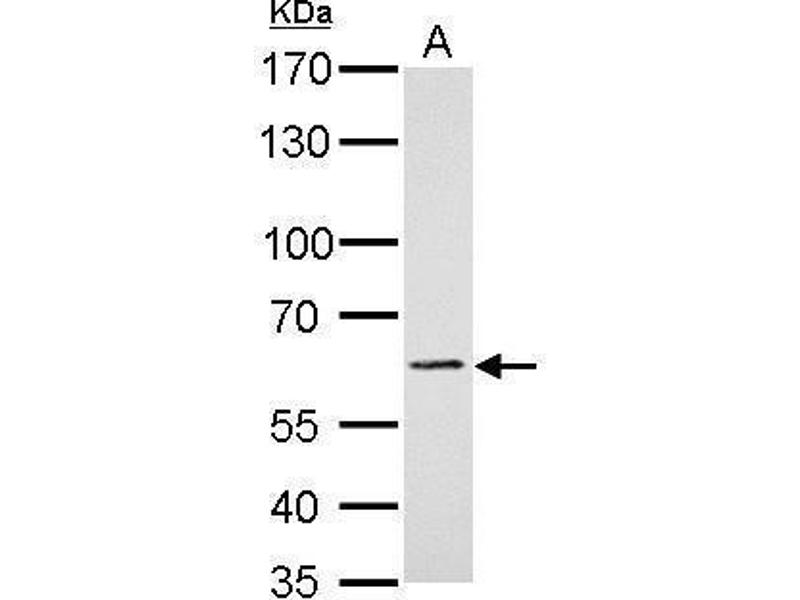 Western Blotting (WB) image for anti-PAK1 antibody (P21-Activated Kinase 1) (Center) (ABIN2855705)
