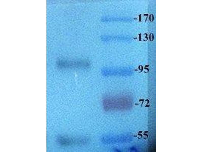 Western Blotting (WB) image for anti-Receptor Tyrosine Kinase-Like Orphan Receptor 2 (ROR2) antibody (ABIN2506619)