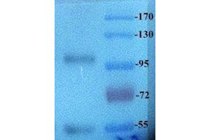 Western Blotting (WB) image for anti-ROR2 antibody (Receptor Tyrosine Kinase-Like Orphan Receptor 2) (ABIN2506619)