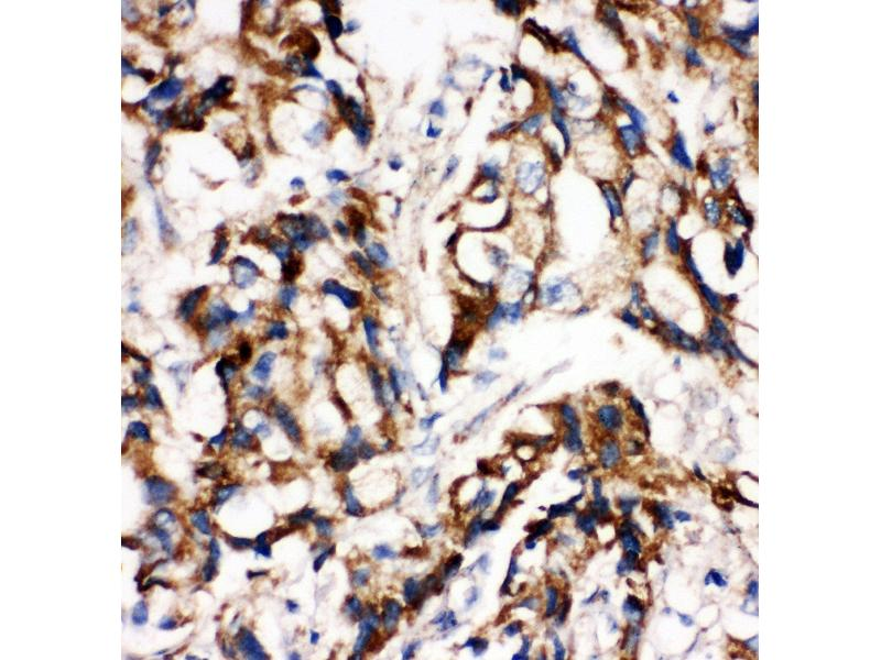 Immunohistochemistry (IHC) image for anti-MAP2K1 antibody (Mitogen-Activated Protein Kinase Kinase 1) (AA 353-367) (ABIN3044391)