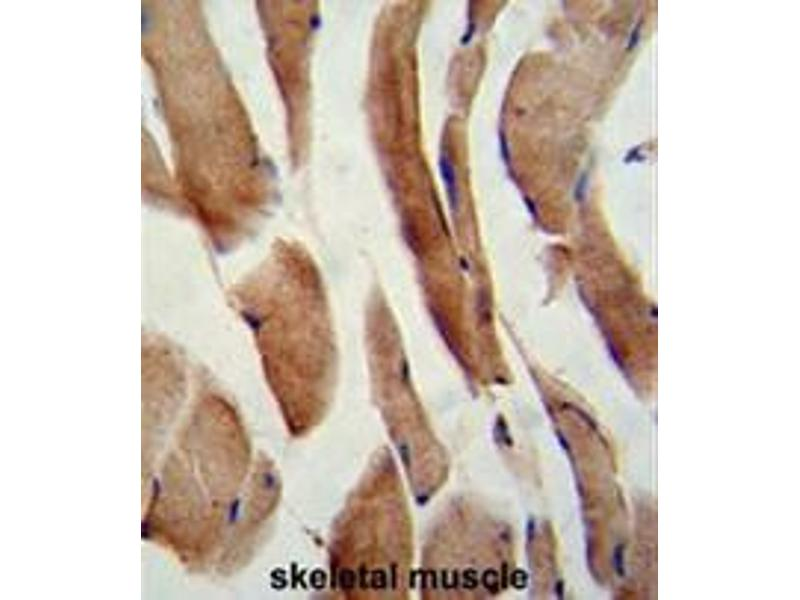 Immunohistochemistry (Paraffin-embedded Sections) (IHC (p)) image for anti-CFLAR antibody (CASP8 and FADD-Like Apoptosis Regulator) (AA 152-182) (ABIN951489)