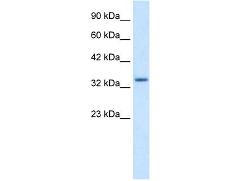 Western Blotting (WB) image for anti-Zinc Finger Protein 134 (ZNF134) (Middle Region) antibody (ABIN183203)
