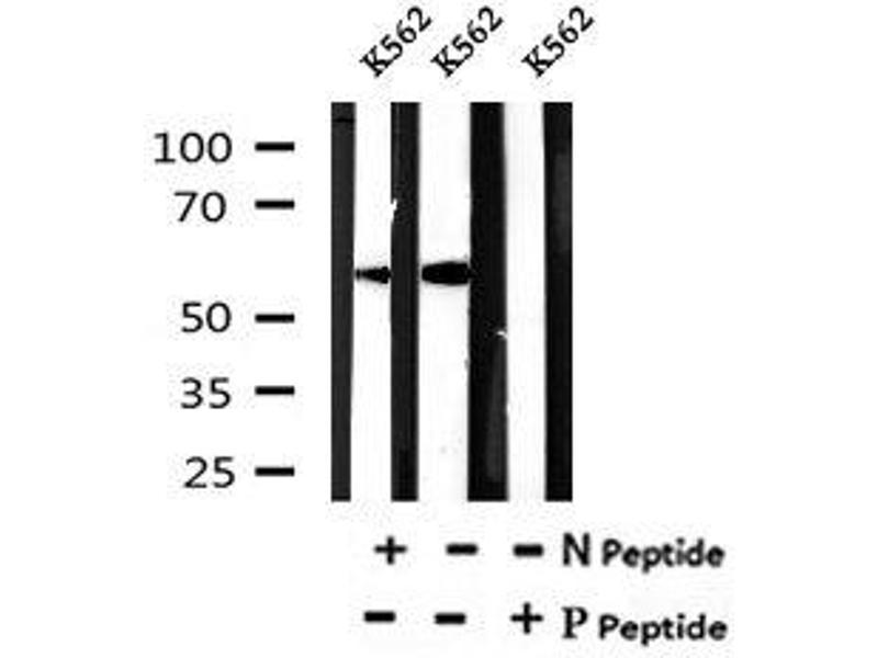 Image no. 2 for anti-DOK2 (pTyr402) antibody (ABIN6269683)