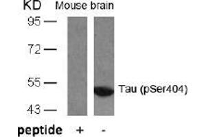 Image no. 1 for anti-Microtubule-Associated Protein tau (MAPT) (pSer404) antibody (ABIN196810)
