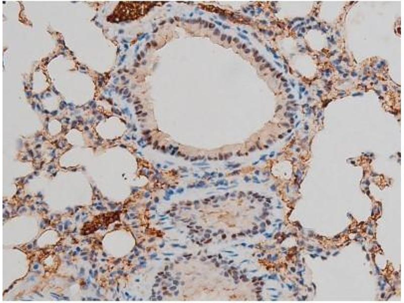 Immunohistochemistry (IHC) image for anti-GATA Binding Protein 1 (Globin Transcription Factor 1) (GATA1) (pSer142) antibody (ABIN6254982)