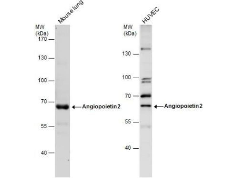 Western Blotting (WB) image for anti-Angiopoietin 2 (ANGPT2) (Center) antibody (ABIN4280609)