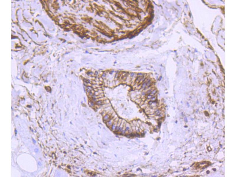 Immunohistochemistry (IHC) image for anti-Actin, alpha 2, Smooth Muscle, Aorta (ACTA2) antibody (ABIN4902899)
