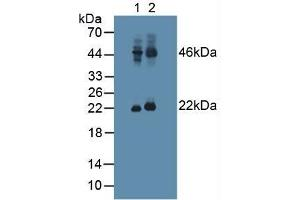 Image no. 2 for anti-Adenylate Cyclase Activating Polypeptide 1 (Pituitary) (ADCYAP1) (AA 17-176) antibody (ABIN1862104)