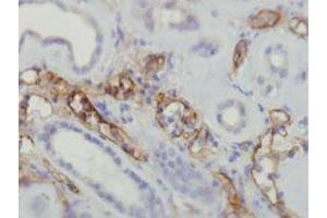 Image no. 1 for anti-Complement Fragment C4a (C4a) (Internal Region) antibody (ABIN5774024)