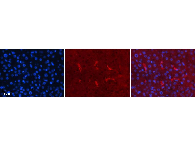 Immunohistochemistry (IHC) image for anti-Cyclin-Dependent Kinase 2 (CDK2) (Middle Region) antibody (ABIN2779325)