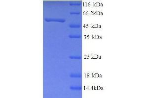 Image no. 1 for Neuropeptide FF Receptor 2 (NPFF2) (AA 1-420), (full length) protein (His tag) (ABIN5713706)