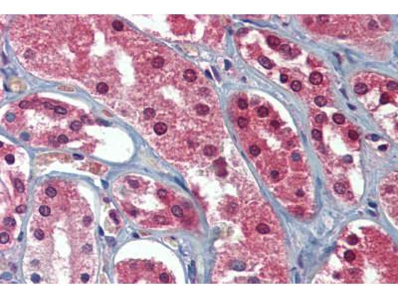 Image no. 2 for anti-AAK1 (C-Term) antibody (ABIN462517)