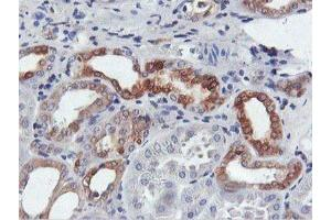 Immunohistochemistry (Paraffin-embedded Sections) (IHC (p)) image for anti-Farnesyl-Diphosphate Farnesyltransferase 1 (FDFT1) antibody (ABIN4311301)