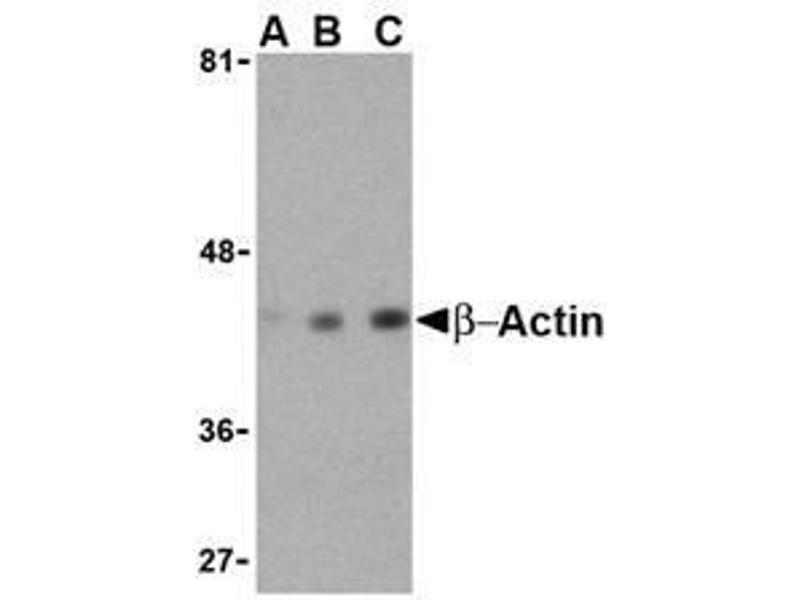 Western Blotting (WB) image for anti-beta Actin antibody (Actin, beta) (C-Term) (ABIN499441)