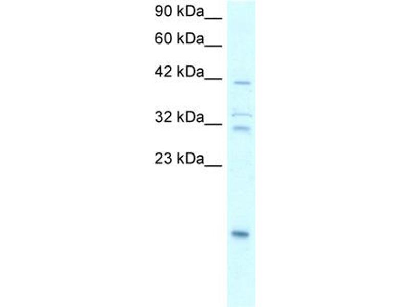 Western Blotting (WB) image for anti-NFKBIA antibody (Nuclear Factor of kappa Light Polypeptide Gene Enhancer in B-Cells Inhibitor, alpha) (N-Term) (ABIN2792665)