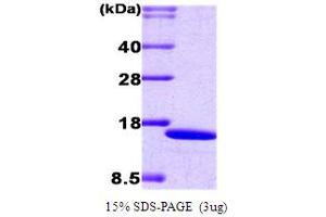 SDS-PAGE (SDS) image for Interferon Regulatory Factor 2 (IRF2) (AA 1-113) protein (His tag) (ABIN666699)