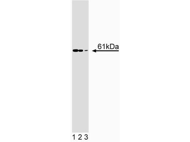 Western Blotting (WB) image for anti-RIPK2 antibody (Receptor-Interacting Serine-threonine Kinase 2) (AA 333-532) (ABIN968829)