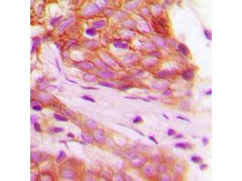 Immunohistochemistry (IHC) image for anti-Fibroblast Growth Factor Receptor 1 (FGFR1) (C-Term), (pTyr766) antibody (ABIN2704788)