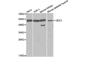 Image no. 2 for anti-Ornithine Decarboxylase 1 (ODC1) antibody (ABIN3015744)